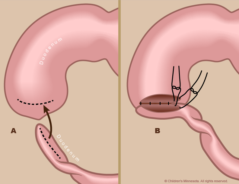 Figure 5 - During surgery to repair duodenum atresia, the surgeon opens up the blocked ends of the duodenum (A) and then sutures them together (B).