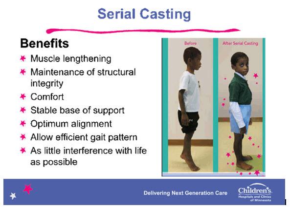 Serial Casting | Children's Minnesota