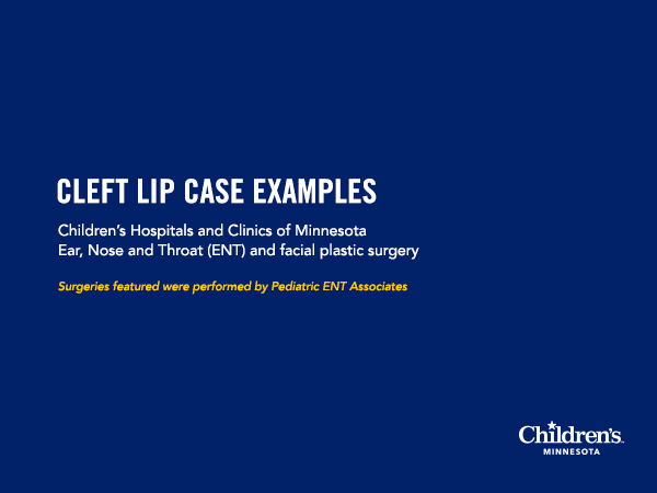 Cleft lip case examples