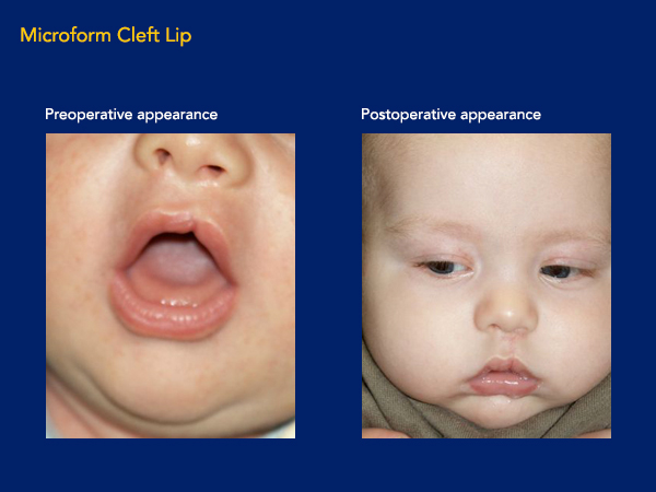 Microform cleft lip