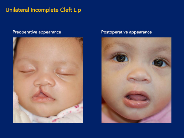 Unilateral incomplete cleft lip