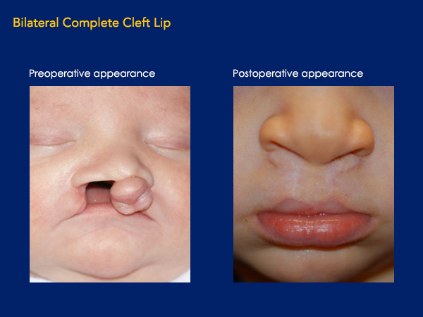 Bilateral complete cleft lip