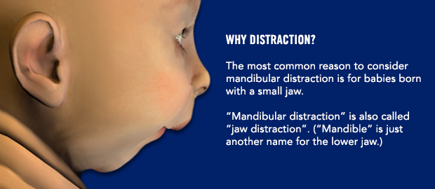 Why distraction?