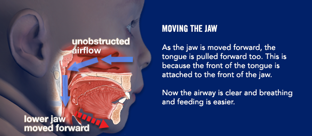 Moving the jaw