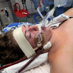 Teen boy in hospital bed with breathing support due to vaping.