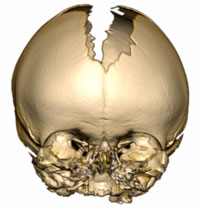 An image of a skull displaying Craniosynostosis Bicoronal