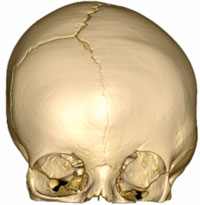 An image of craniosynostosis coronal on the left side of the skull