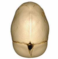 An image of a skull demonstrating Craniosynostosis Sagittal