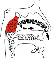 Adenoidectomy | Children's Minnesota