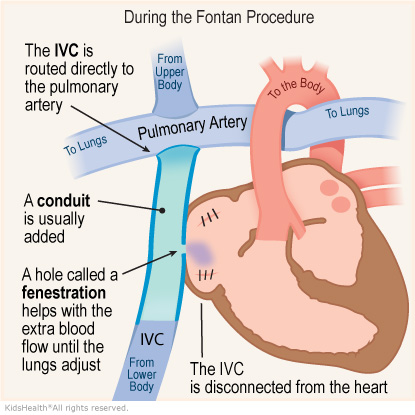 Illustration: During the Fontan Procedure