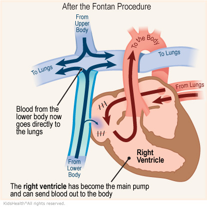 Illustration: After the Fontan Procedure