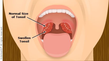 Tonsillectomy: information | Children's Education Materials