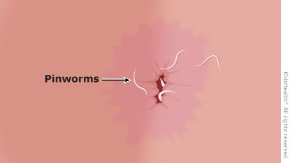 Diagram showing pinworms around the anus.