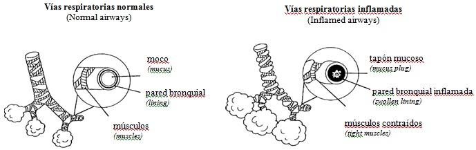 virus sincicial respiratorio panama
